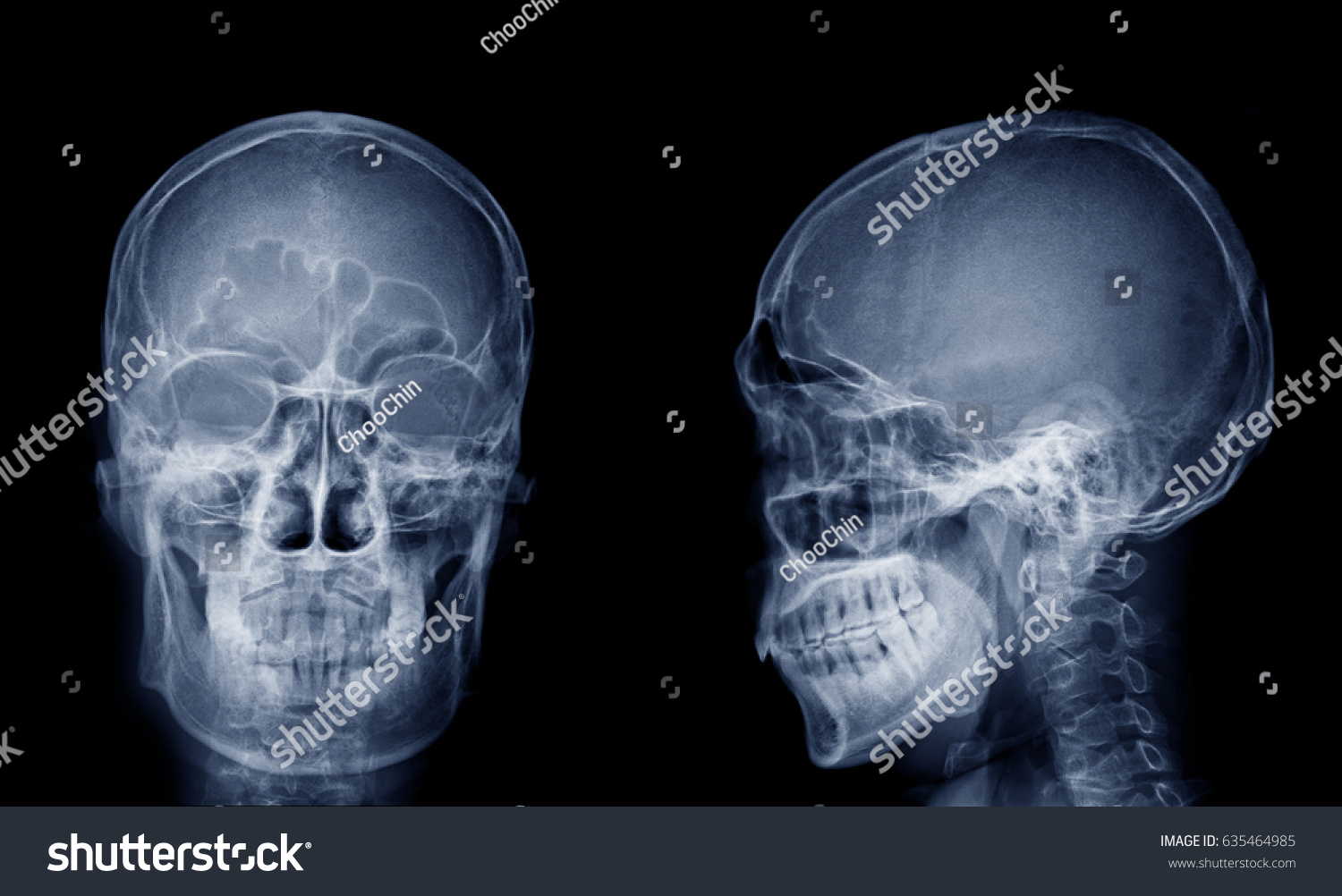 Very Good Quality Xray Image Normal Stock Photo (Edit Now) 635464985 ...