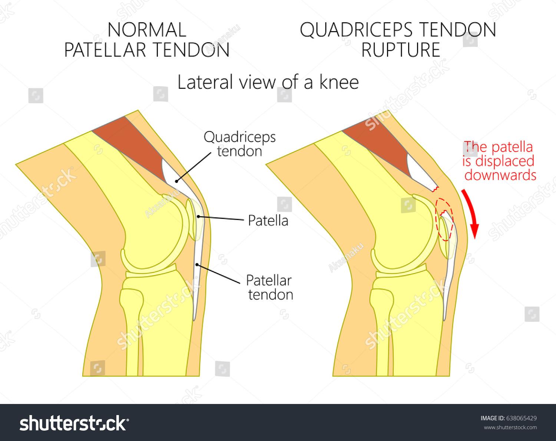 Vector illustration healthy knee joint unhealthy stock vector vector illustration of a healthy knee joint and an unhealthy knee with a quadriceps tendon rupture pooptronica