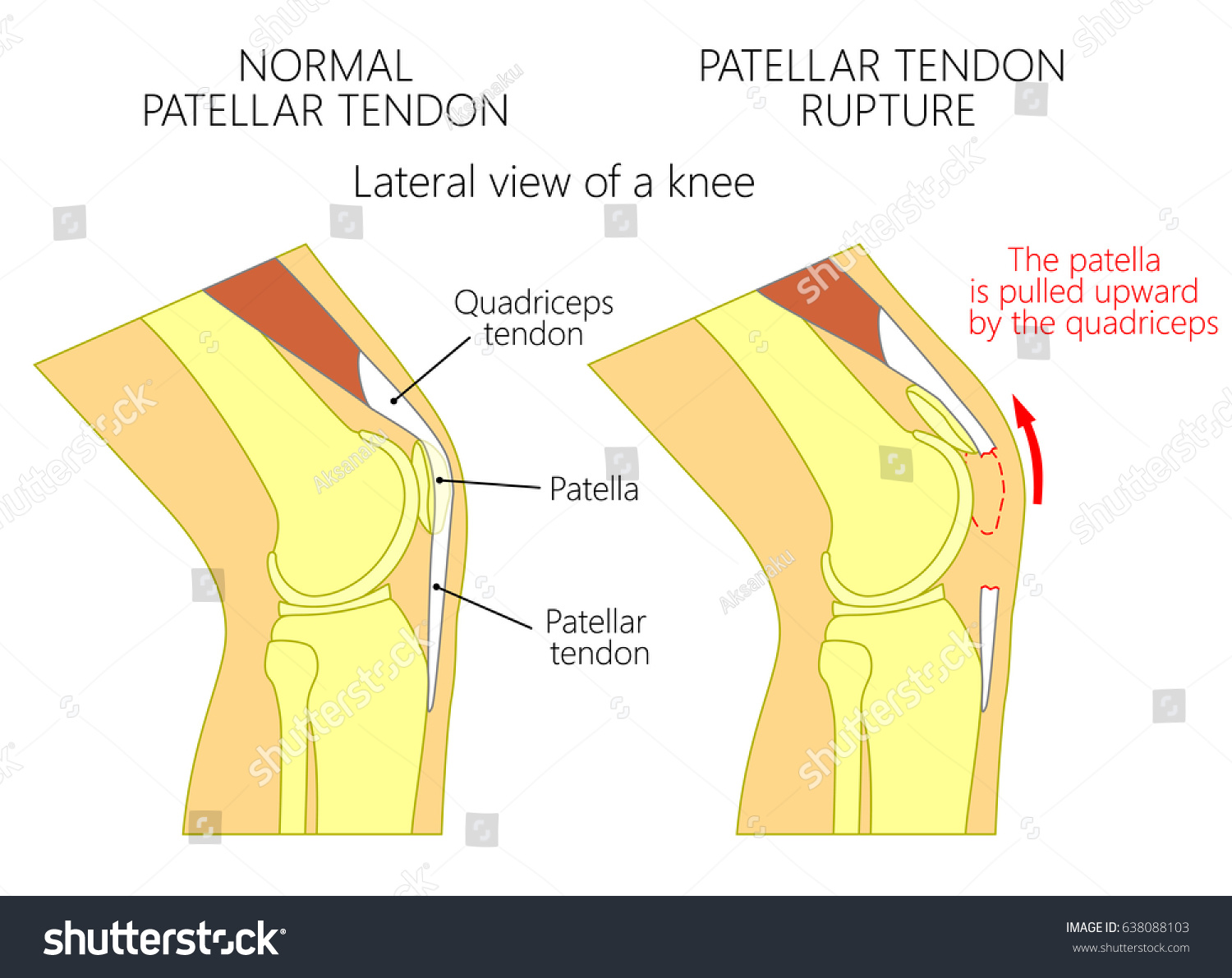 Vector illustration healthy knee joint unhealthy em vetor stock vector illustration of a healthy knee joint and an unhealthy knee with a patellar tendon rupture ccuart Choice Image