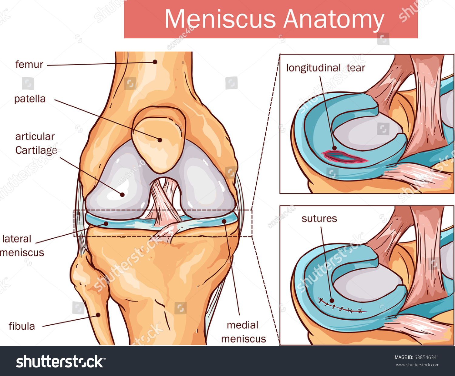 Vector illustration meniscus tear surgery stock vector 638546341 vector illustration of a meniscus tear and surgery pooptronica