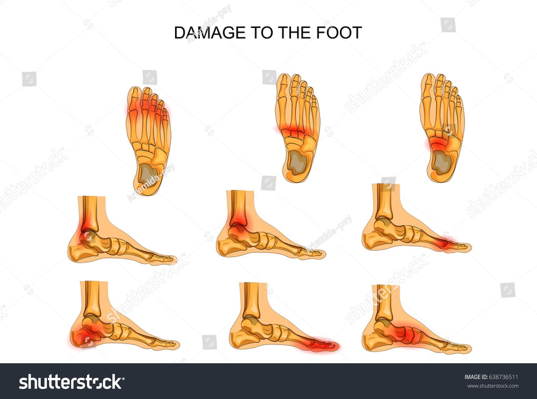 Vector Illustration Injuries Foot Stock Vector 638736511 - Shutterstock