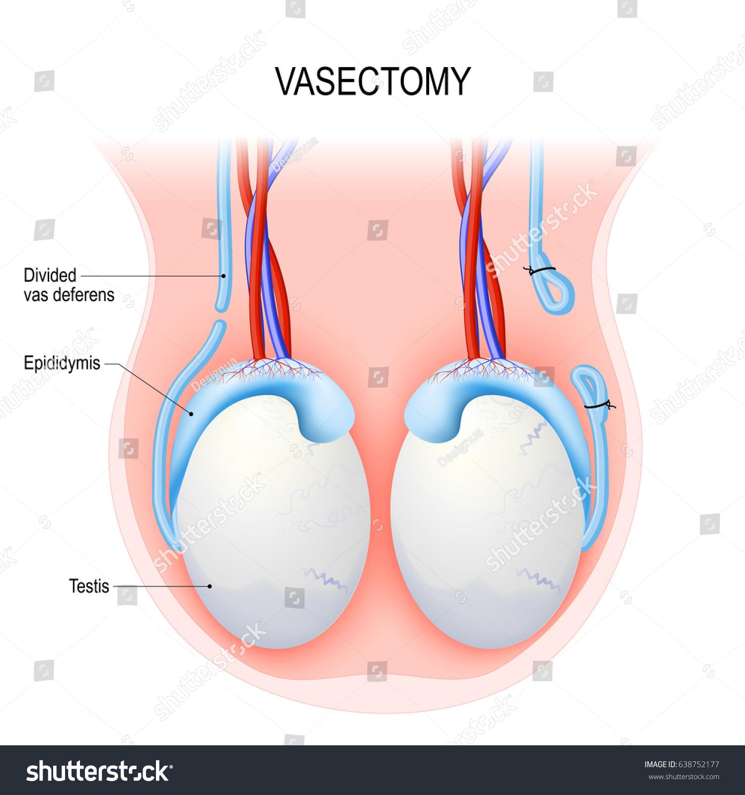 Vas Deferens Diagram Vasectomy Surgi...