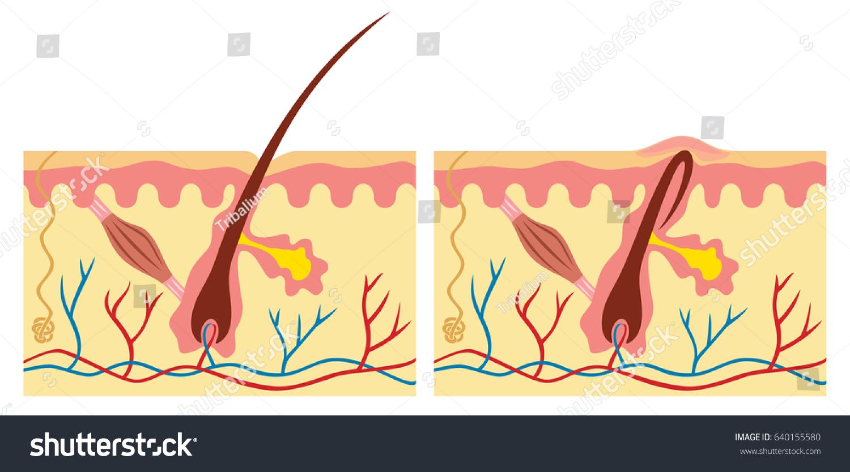 Ingrown Normal Hair Human Skin Anatomy Stock Vector Royalty Free