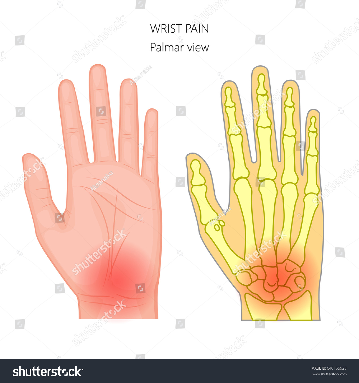 Vector Illustration Unhealthy Human Hand Pain Stock Vector Royalty