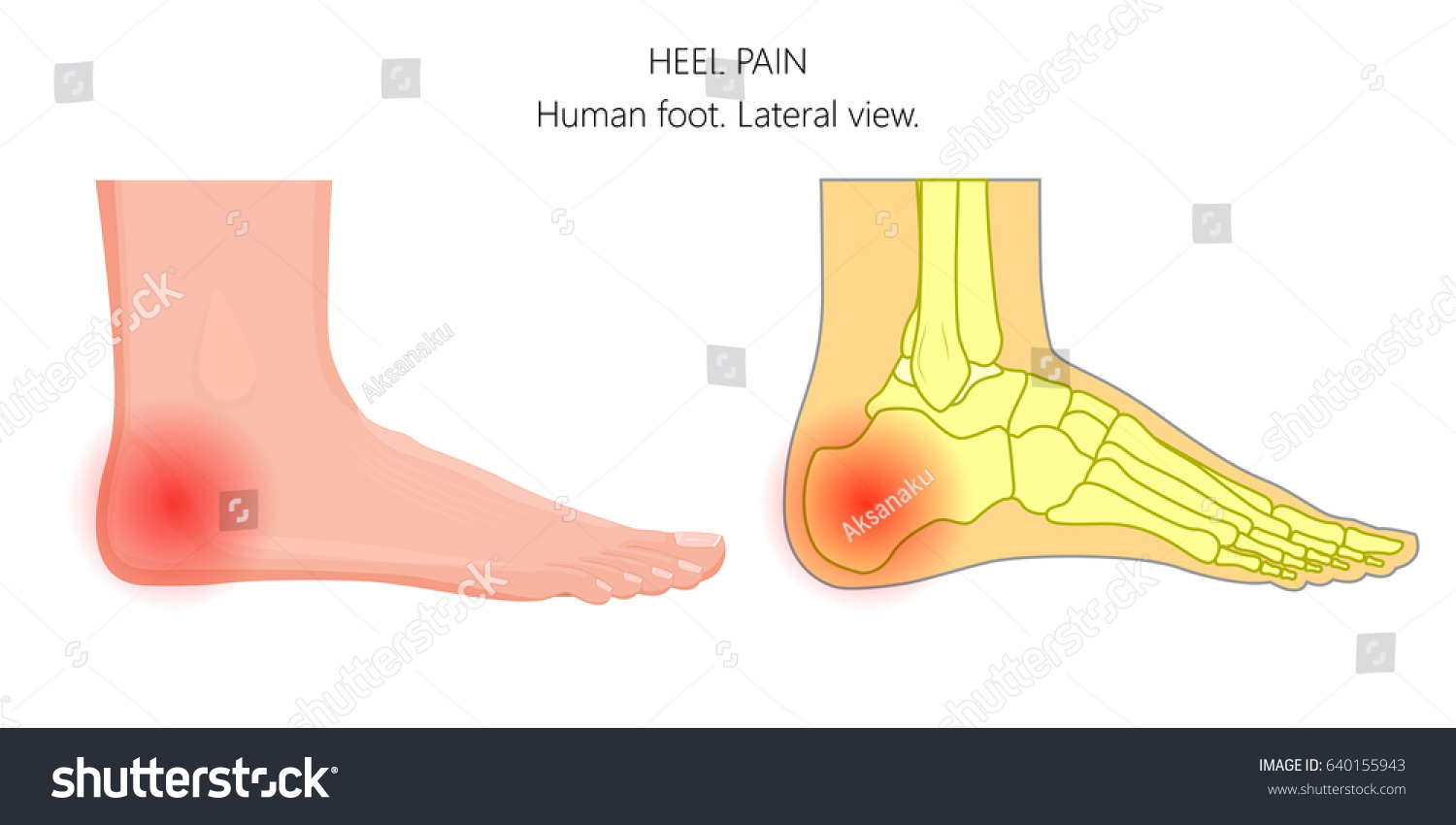 Vector Illustration Unhealthy Human Foot Pain Stock Vector 640155943