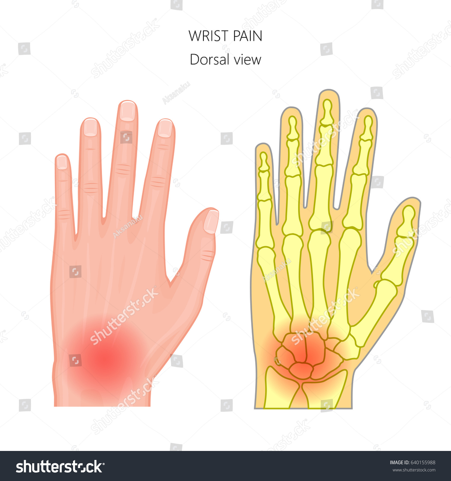 Vector Illustration Unhealthy Human Hand Pain Stock Vector 2018