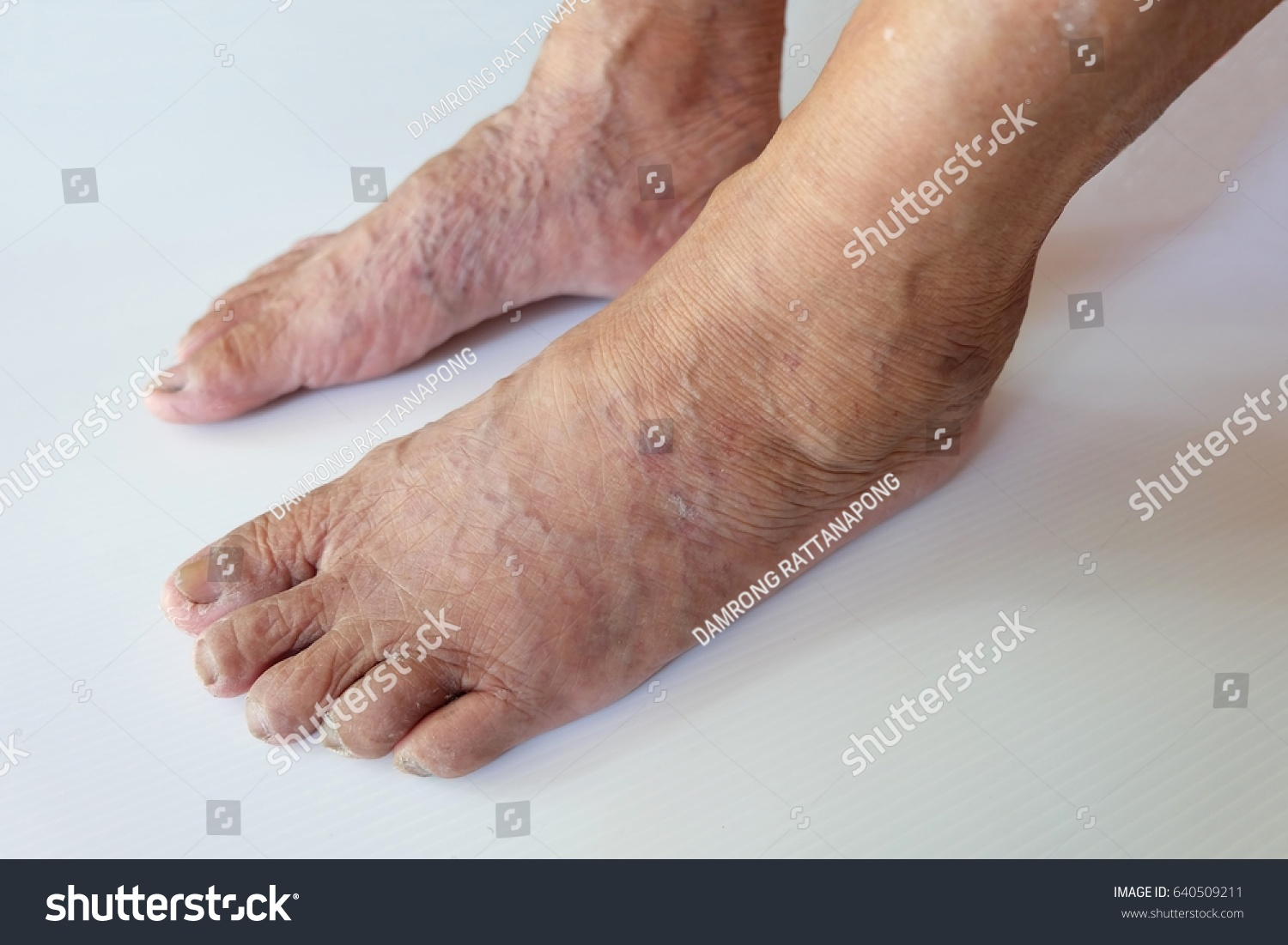 Close Varicose Veins Legs Foot Old Stock Photo Edit Now 640509211