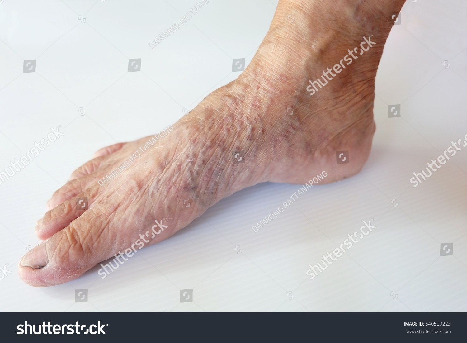 Close Varicose Veins Legs Foot Old Stock Photo Edit Now 640509223