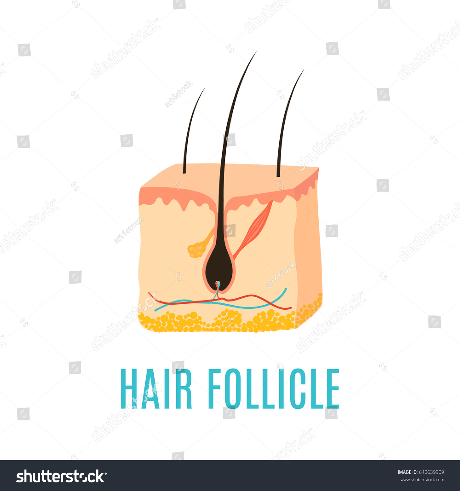 hair follicle diagram  hair bulb medical diagnostics symbol  removal,  treatment and transplantation concept