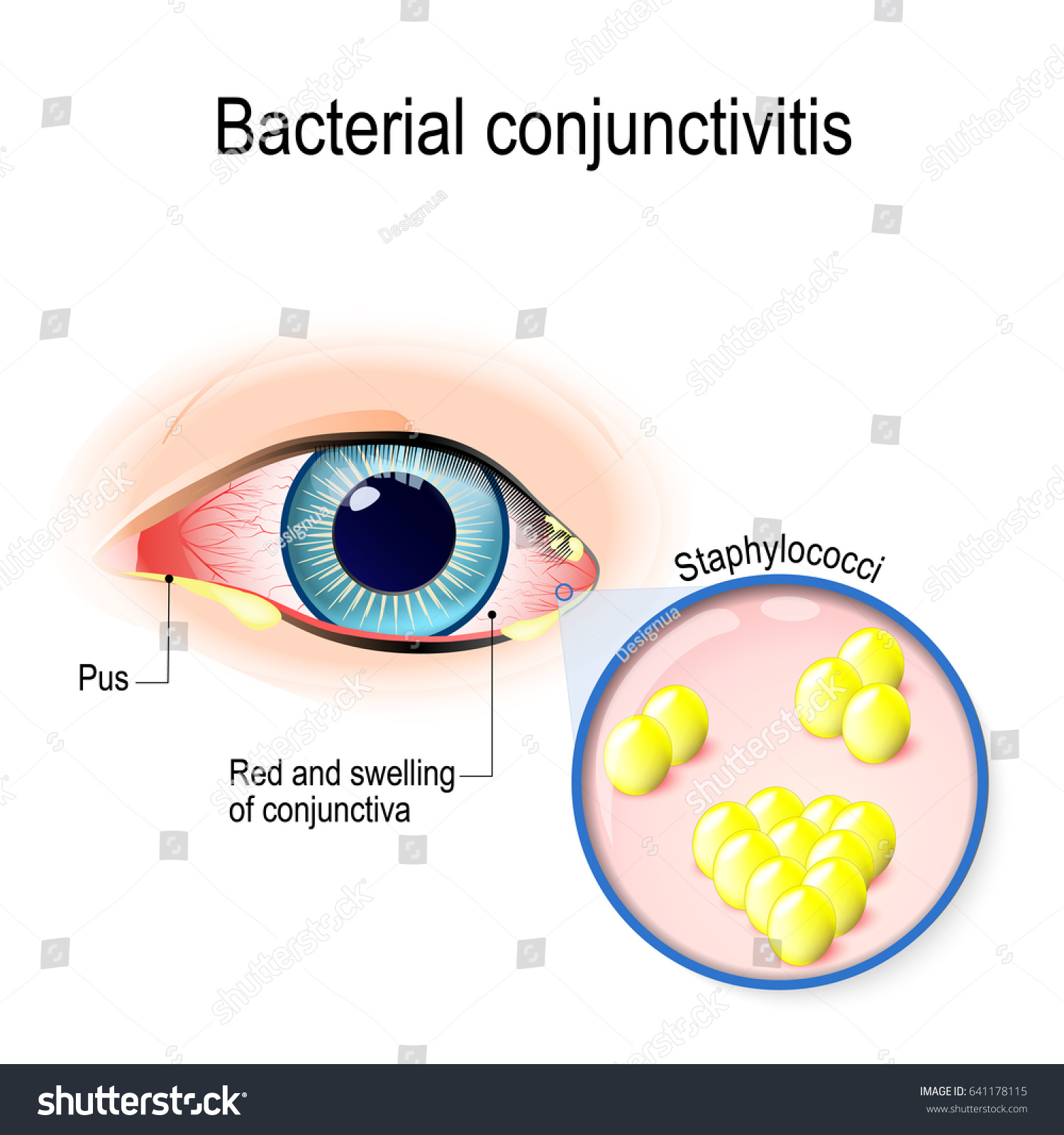 Allergic Conjunctivitis Vs Bacterial Pictures To Pin On: Bacterial Conjunctivitis Eye Conjunctivitis Bacteria That