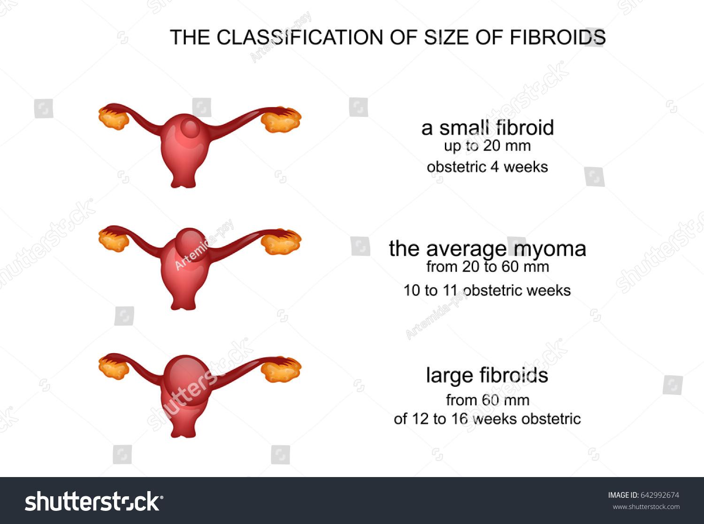 Vector Illustration Uterine Fibroids By Week Stock Vector