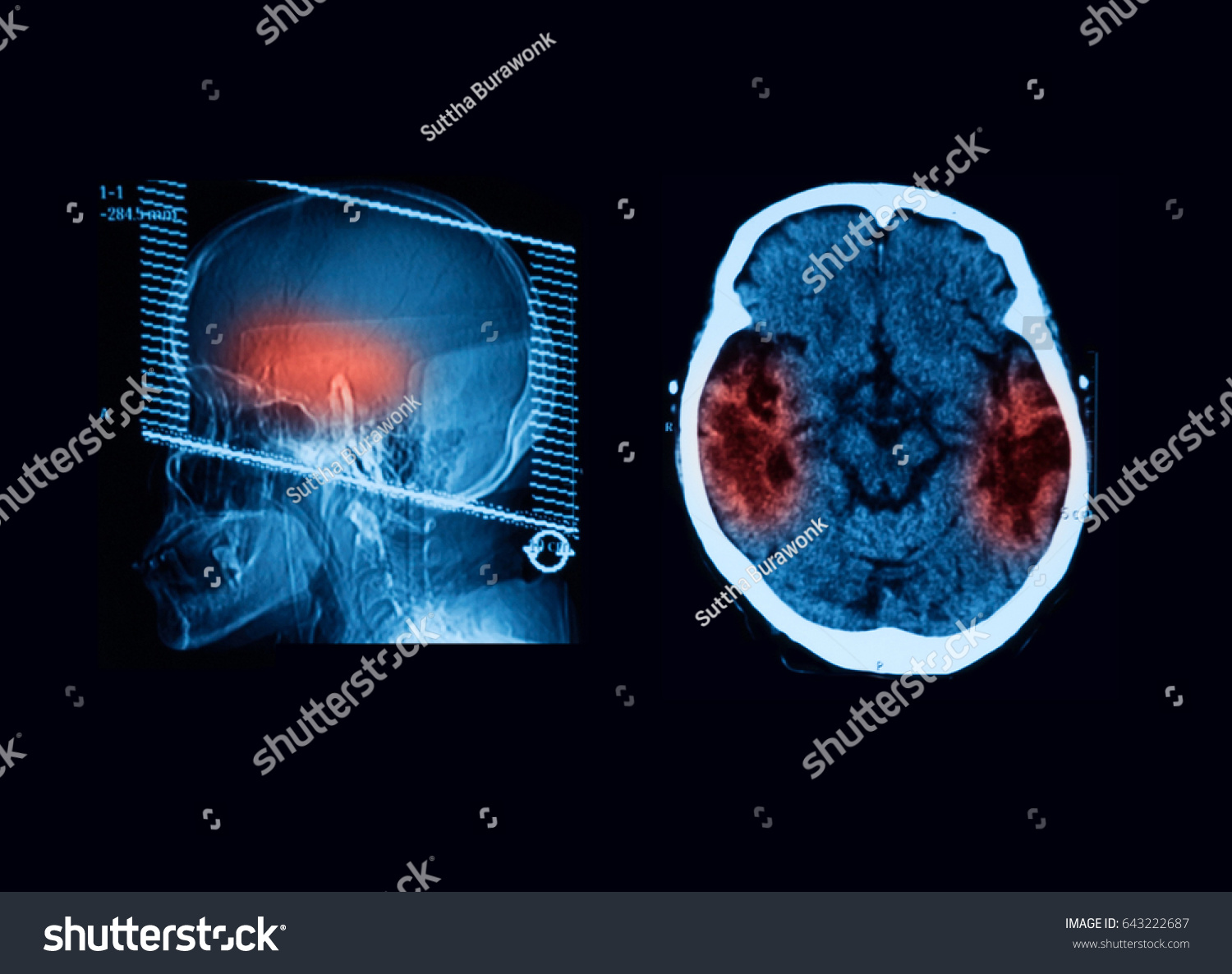 computed tomography ct scan brain cerebrovascular stock photo edit