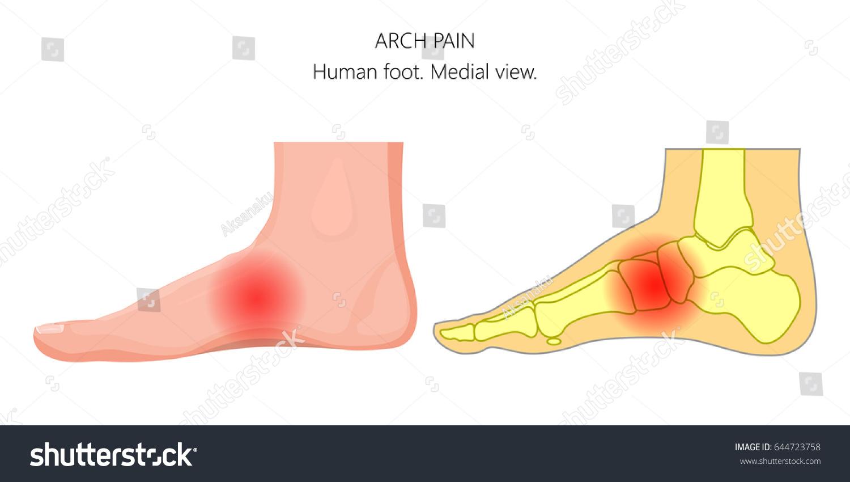 Vector Illustration Unhealthy Human Foot Arch Stock Photo Photo