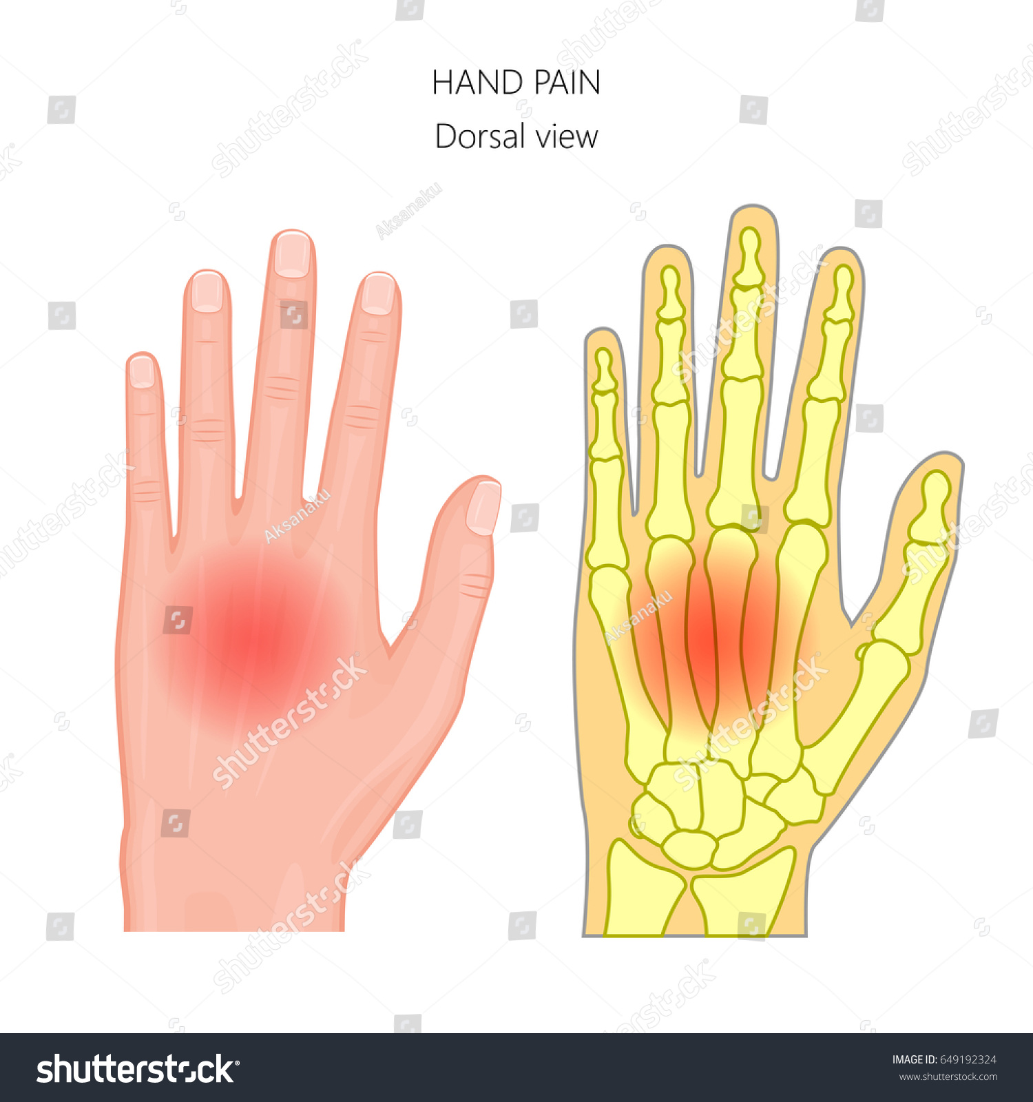 Vector Illustration Unhealthy Human Hand Pain Stock Vector 649192324