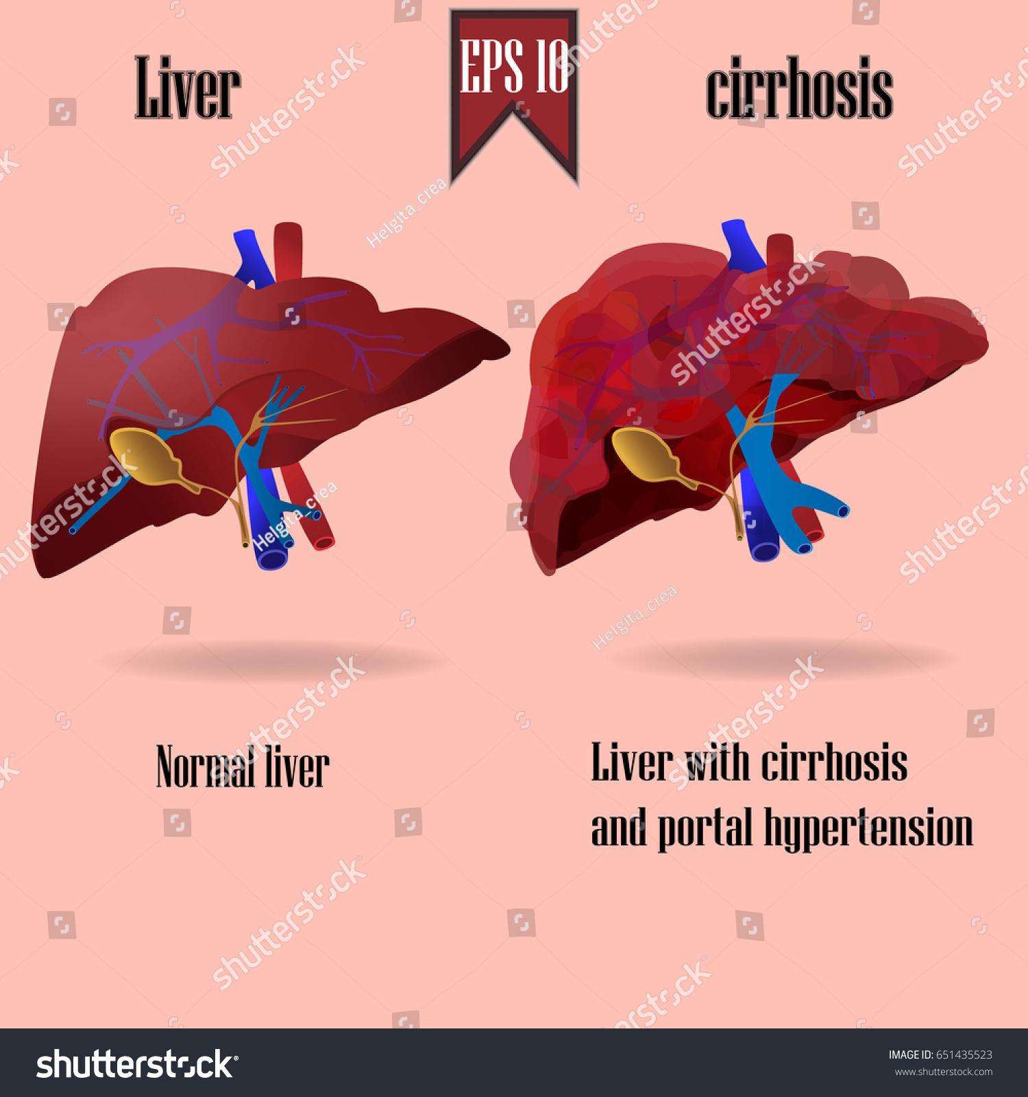 Human Liver Anatomy Healthy Cirrhosis Vector Stock Vector Royalty