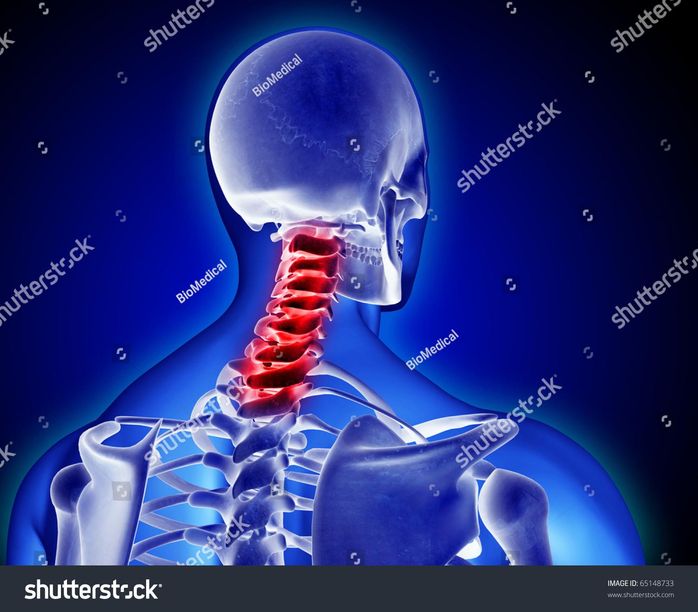 Neck Pain Stock Illustration 65148733 - Shutterstock