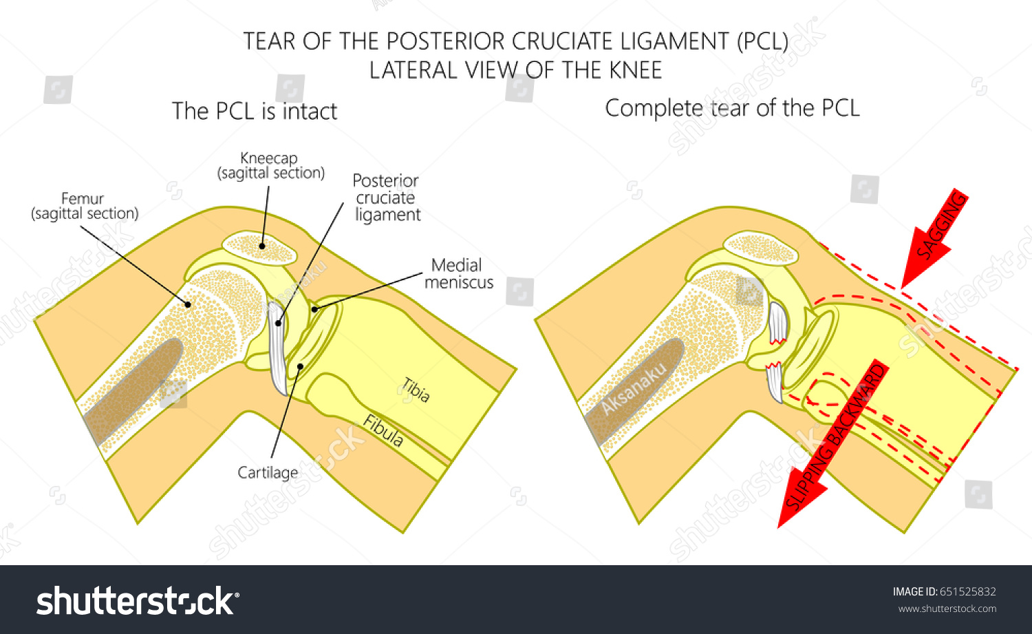 Vector Illustration Anatomy Knee Joint Healthy Stock Vector ...