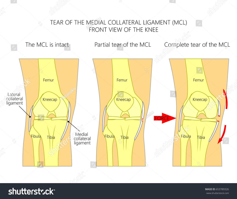 Vector Illustration Anatomy Knee Joint Healthy Stock Vector ...