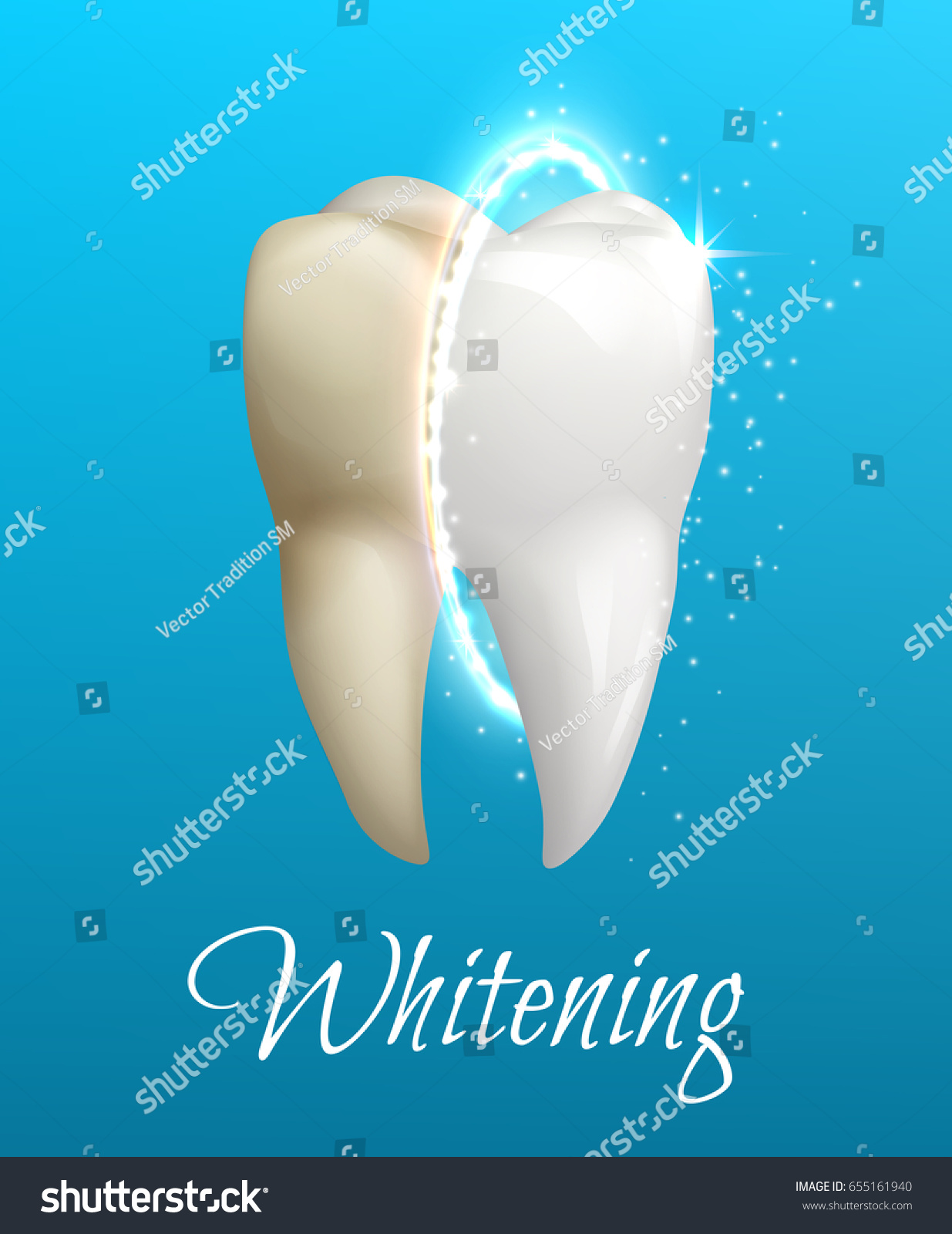 Whitening treatment as is indicated by comparison to the whitening - Teeth Whitening 3d Concept Comparison Of Clean And Dirty Tooth Before And After Whitening Treatment