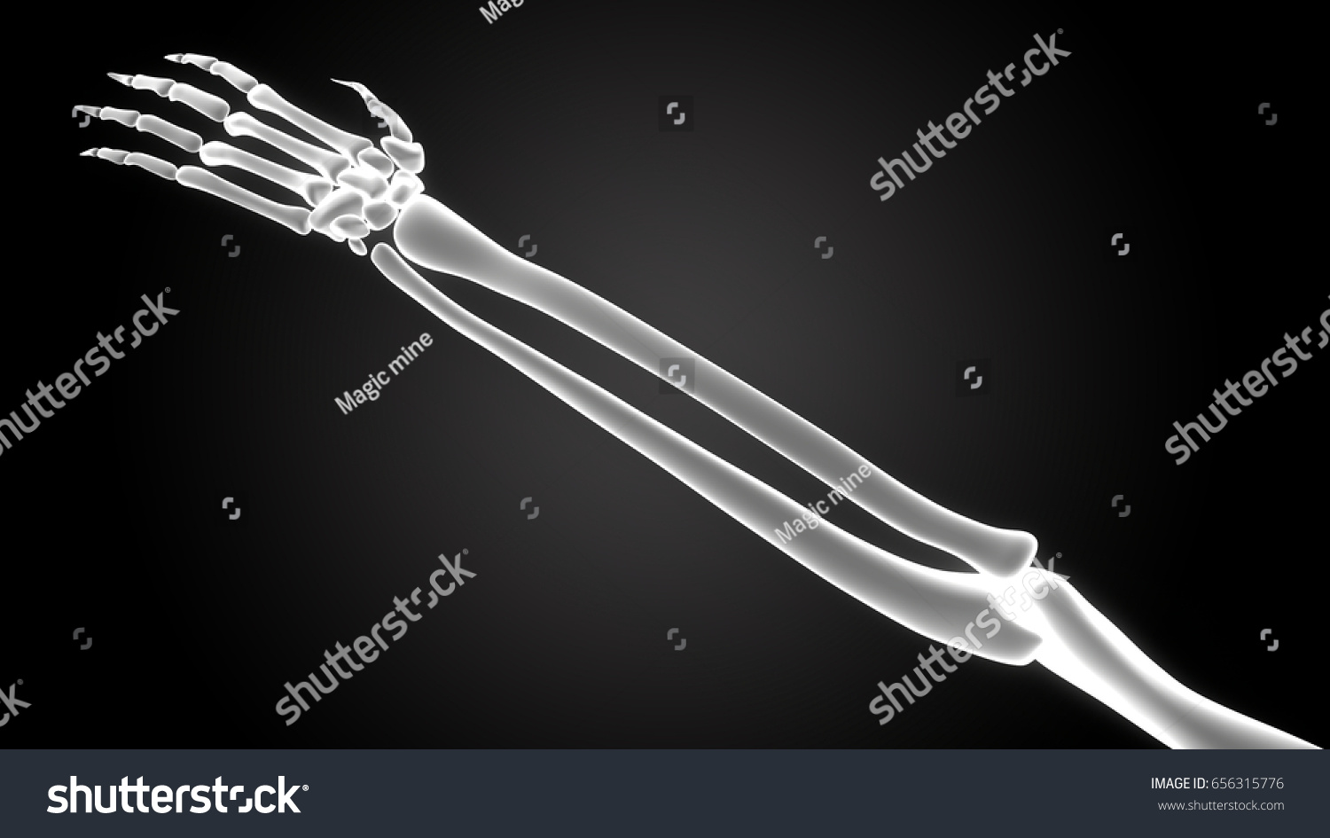 Human Body Bone Joint Pains Anatomy (Hand Joints) in x-ray scan. 3D ...