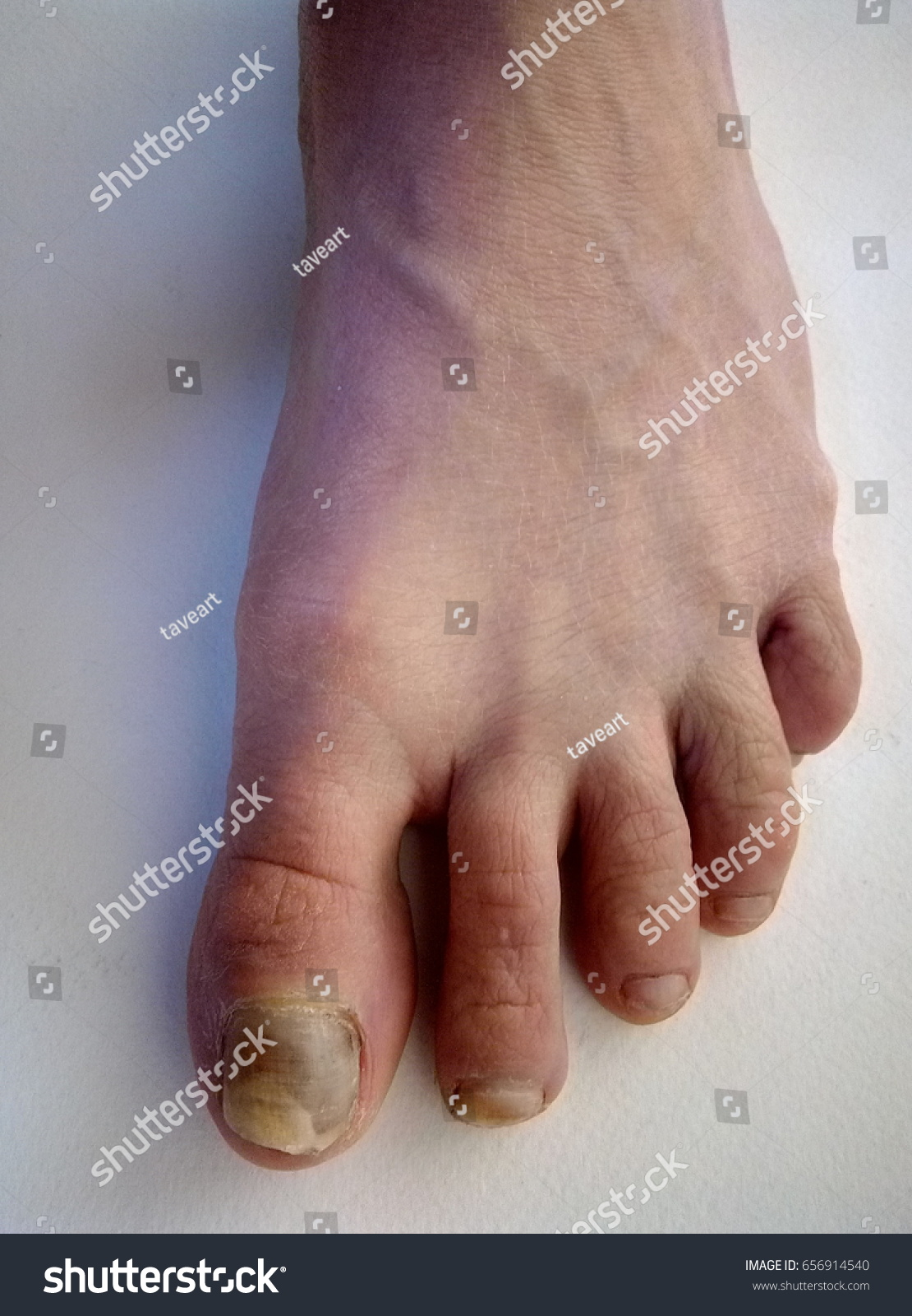 Bruise Nail On Foot Stock Photo (Royalty Free) 656914540 - Shutterstock