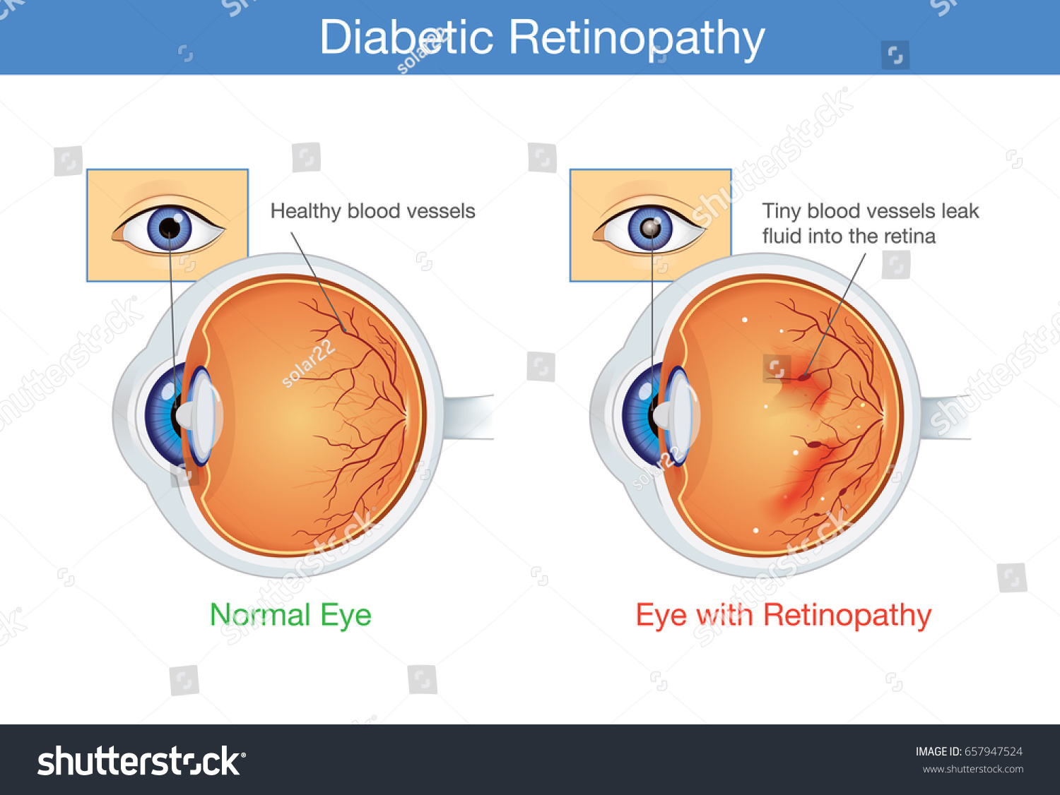 Anatomy Normal Eye Diabetic Retinopathy People Stock Vector ...
