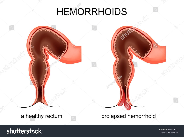 Vector Illustration Prolapsed Hemorrhoid Veins Stock Vektorgrafik