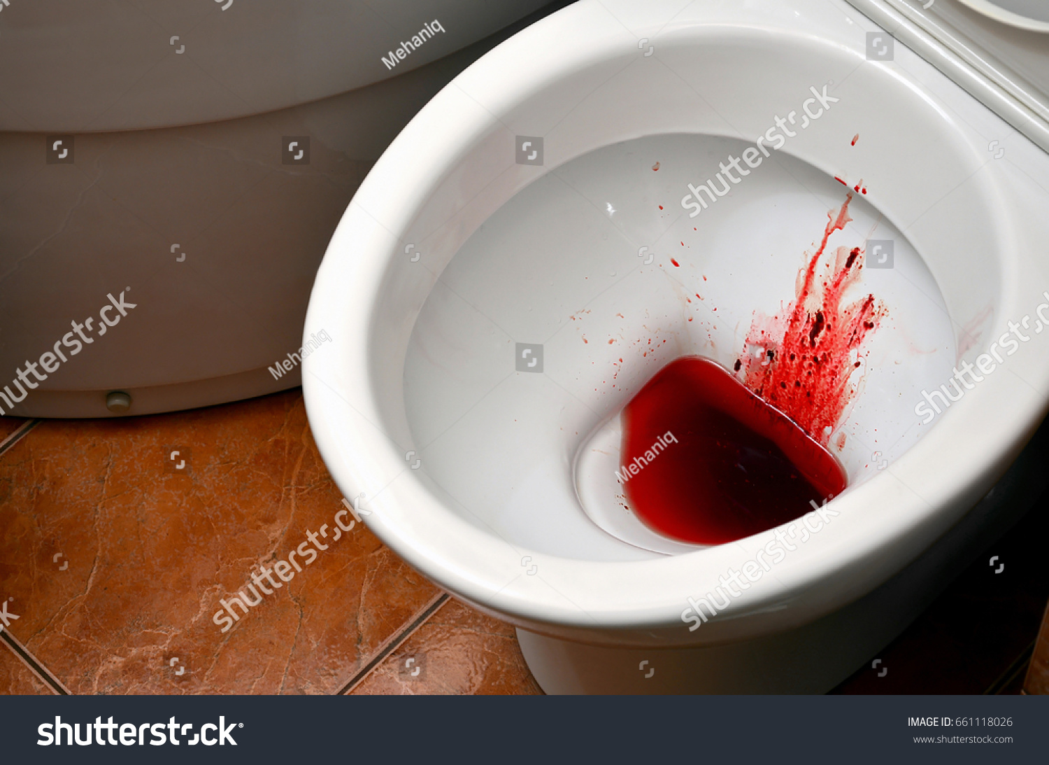 Can You Get An Std From Blood On A Toilet Seat Nice Houzz