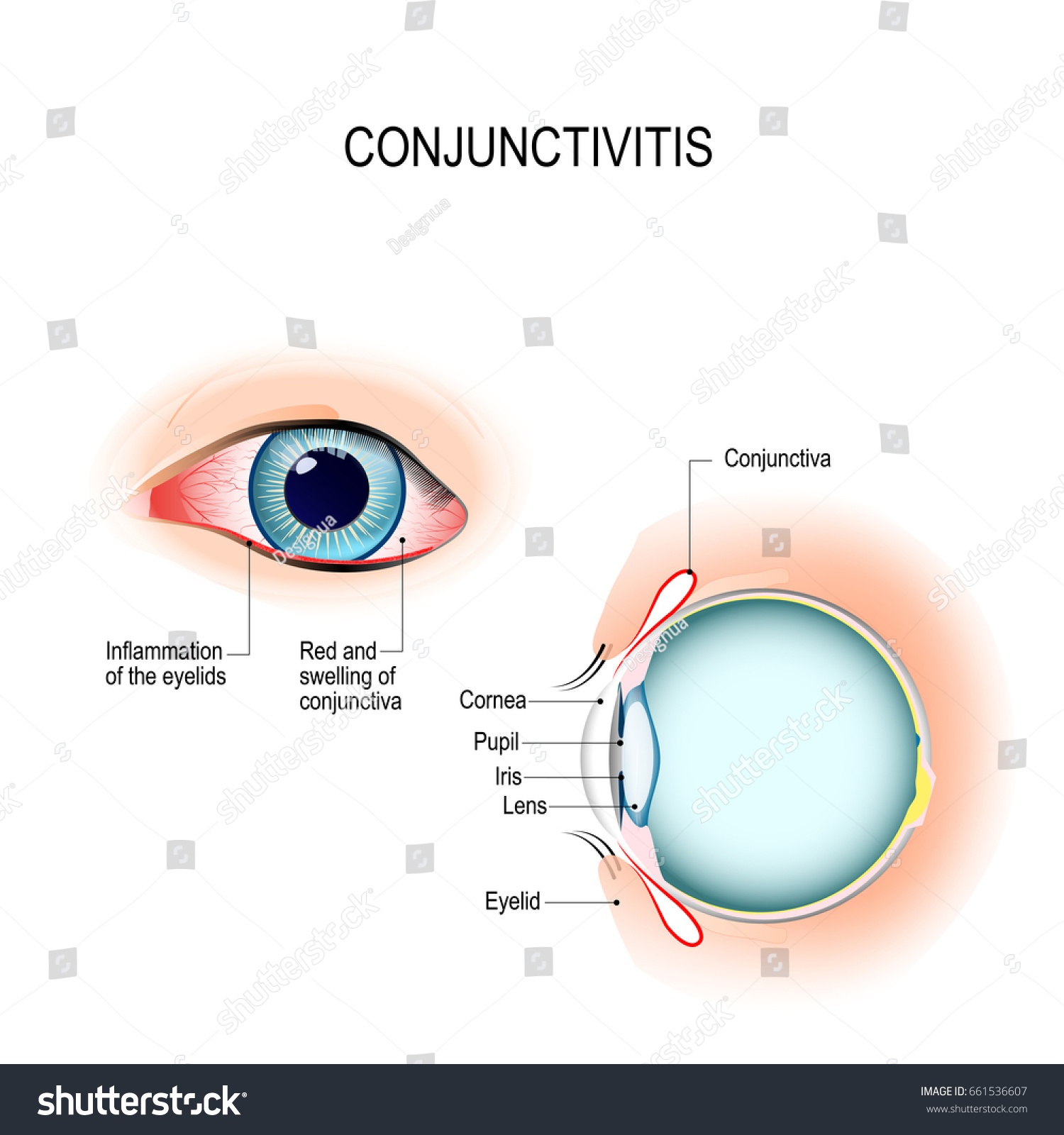 conjunctivitis pink eye with inflammation external stock. Black Bedroom Furniture Sets. Home Design Ideas