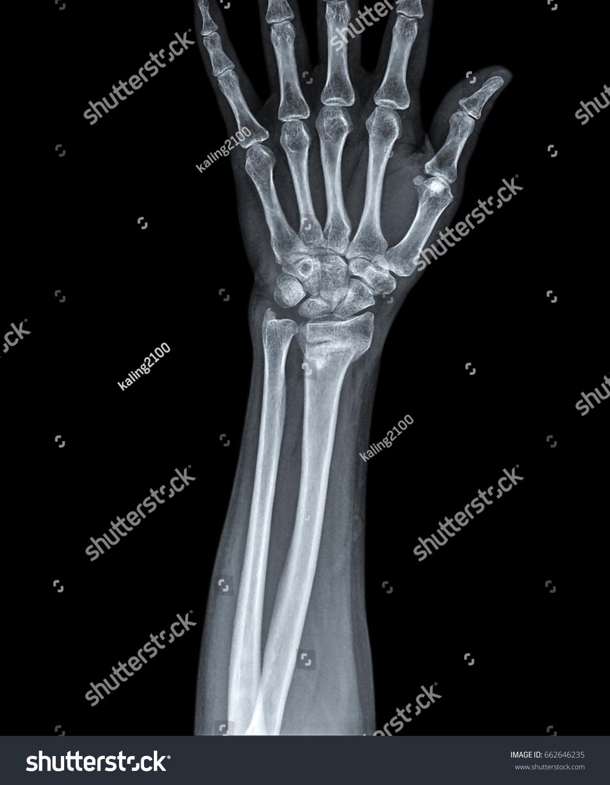 X Ray Image Show Fracture Of The Radius Bone Ez Canvas