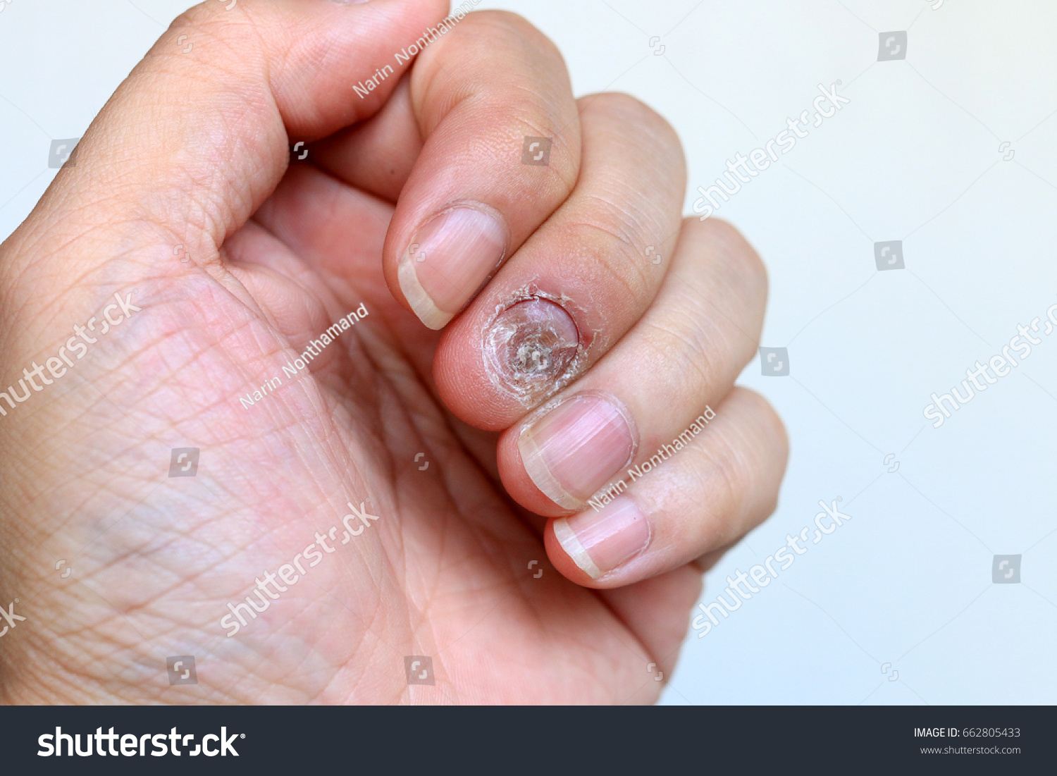 Close Nail Fungus Infection On Middle Stock Photo (Royalty Free ...