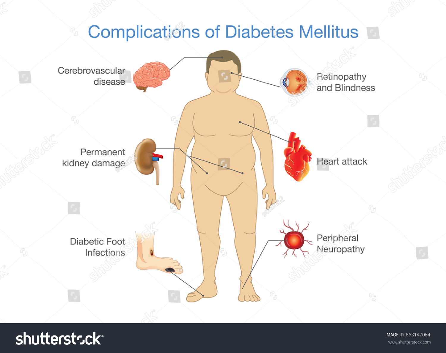 Belly Fat Diagram Starting Know About Wiring Exiss Trailer Complications Diabetes Mellitus People Illustration