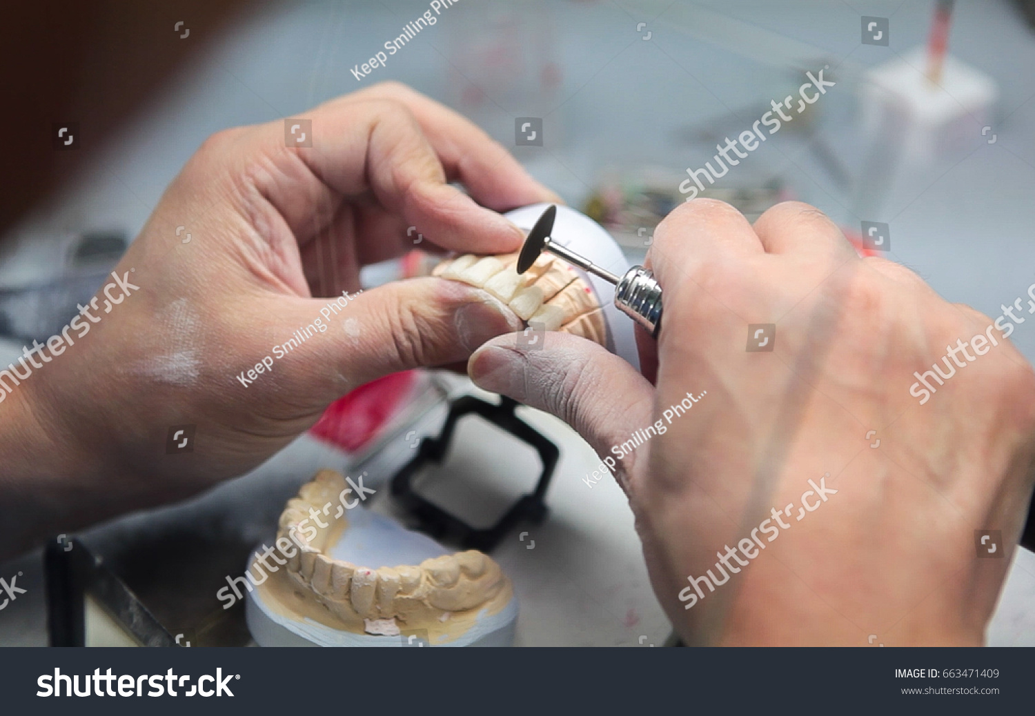 Mans Hands Working On A Tooth Implant