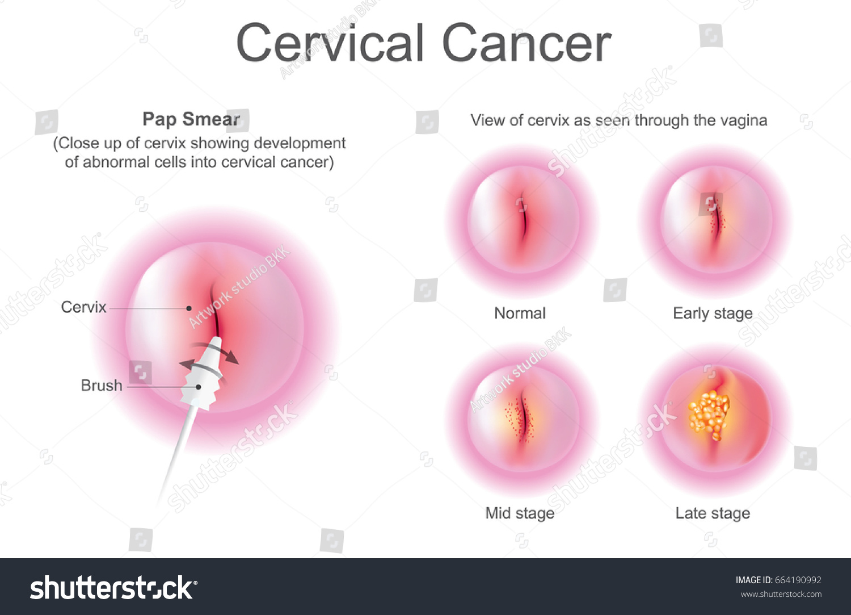 Vetor stock de pap smear screening procedure cervical cancer livre pap smear is a screening procedure for cervical cancer health care info graphic vector ccuart Choice Image