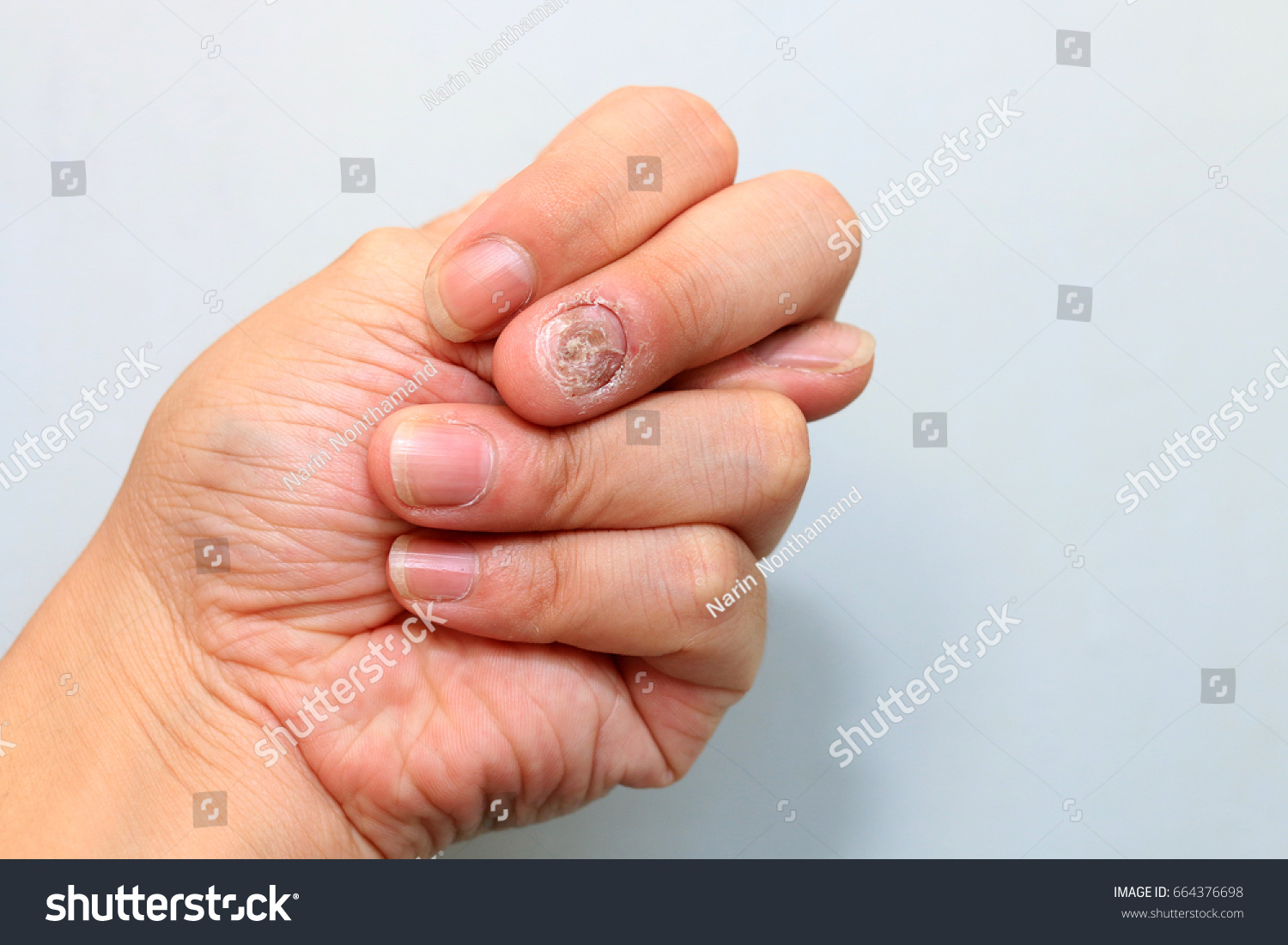 Close Nail Fungus Infection On Middle Stock Photo (100% Legal ...