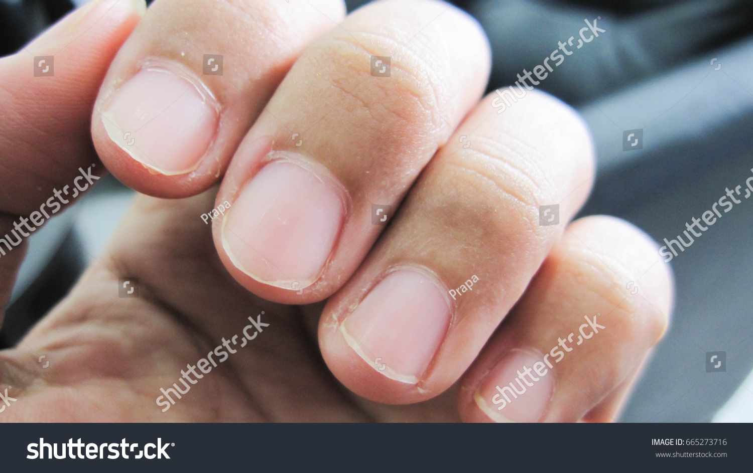 Nails That Do Not Care Delicate Stock Photo (Royalty Free) 665273716 ...