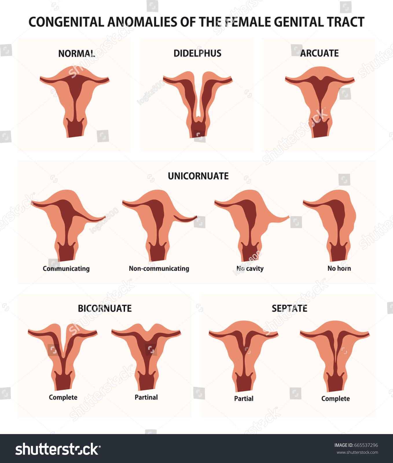 Congenital Anomalies Female Genital Tract Stock Vector 665537296 ...