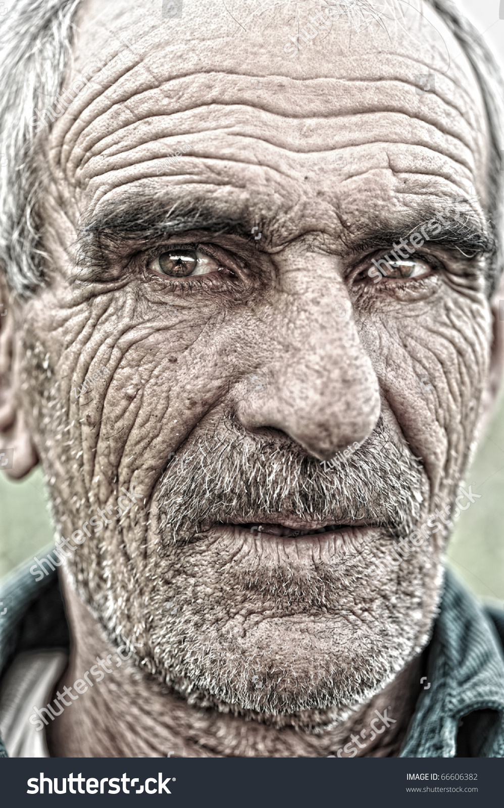 EverythingHealth: Skin Conditions With Aging |Wrinkly Skin
