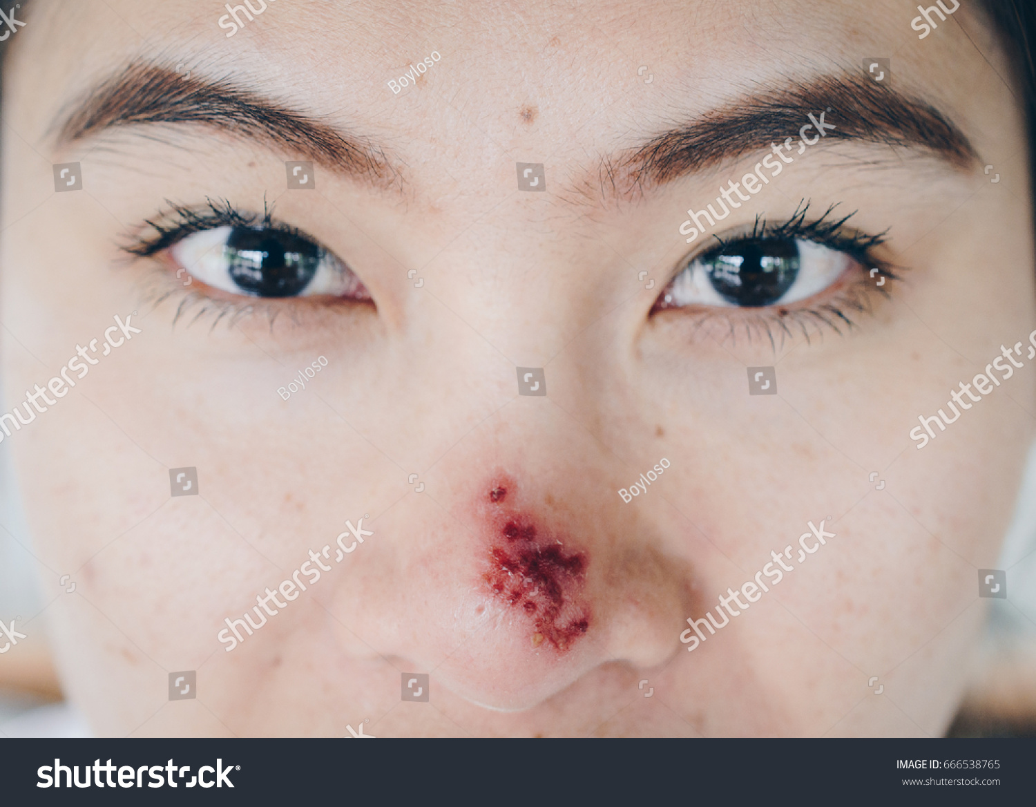 How To Treat Eye Herpes Naturally