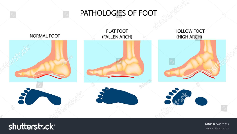 Foot pathologies normal flat hollow stock vector