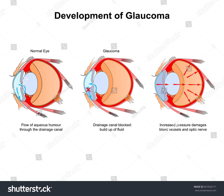 development glaucoma diagram eye stock vector (royalty free) 667630171 Retinal Detachment Diagram