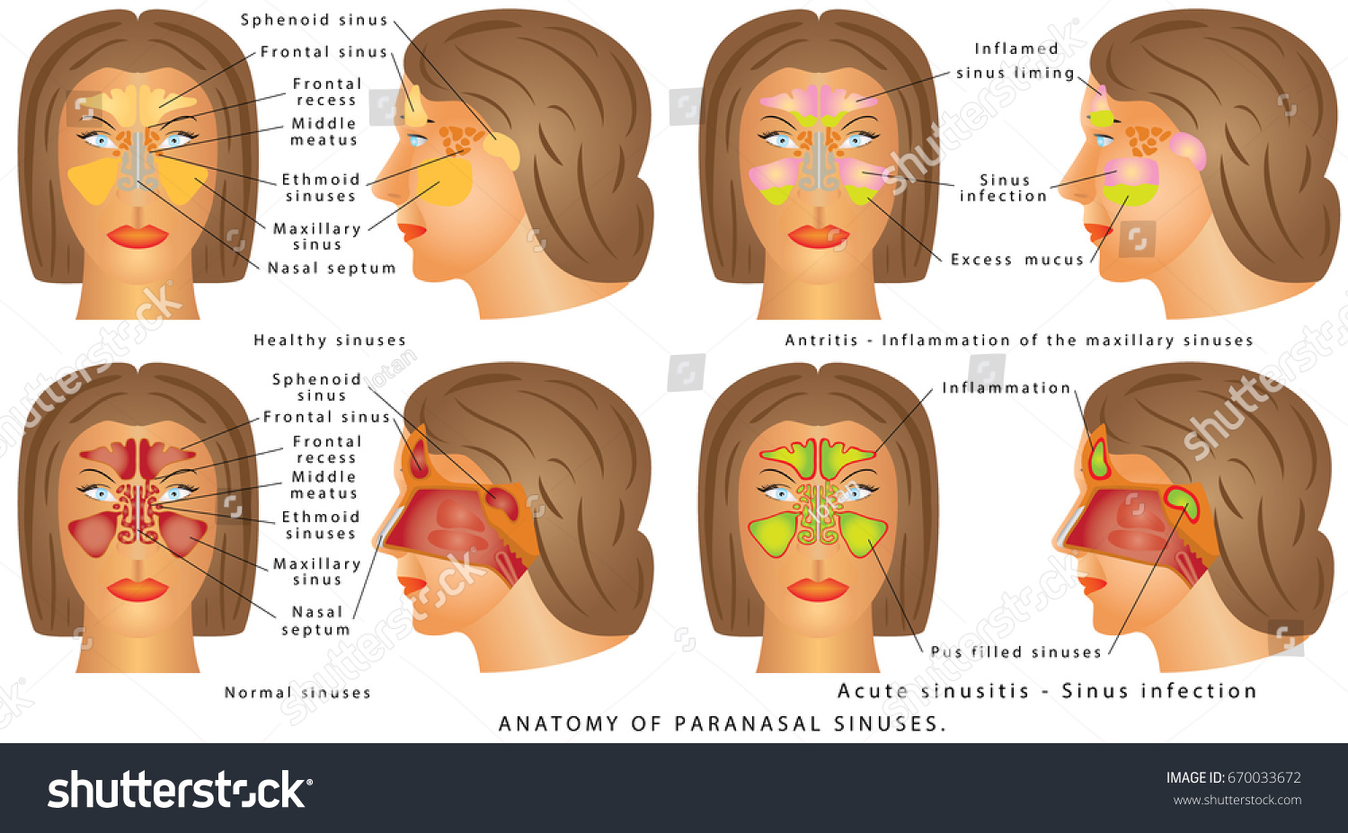 Nasal Sinus Human Anatomy Sinus Diagram Stock Vector 670033672 ...