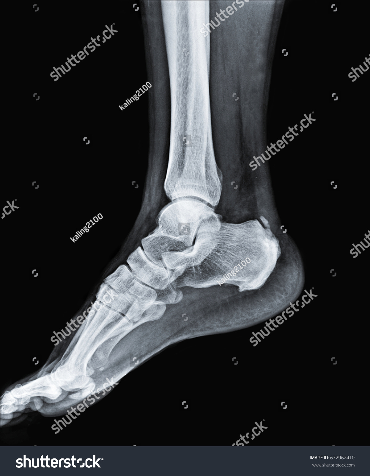 X Ray Ankle Joint Human Leg Stock Photo 100 Legal Protection