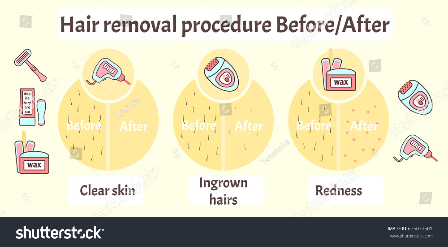 Flat vector hair removal aftereffects infographics stock vector flat vector hair removal aftereffects infographics comparison of hair removal before procedure and after effects pooptronica Choice Image