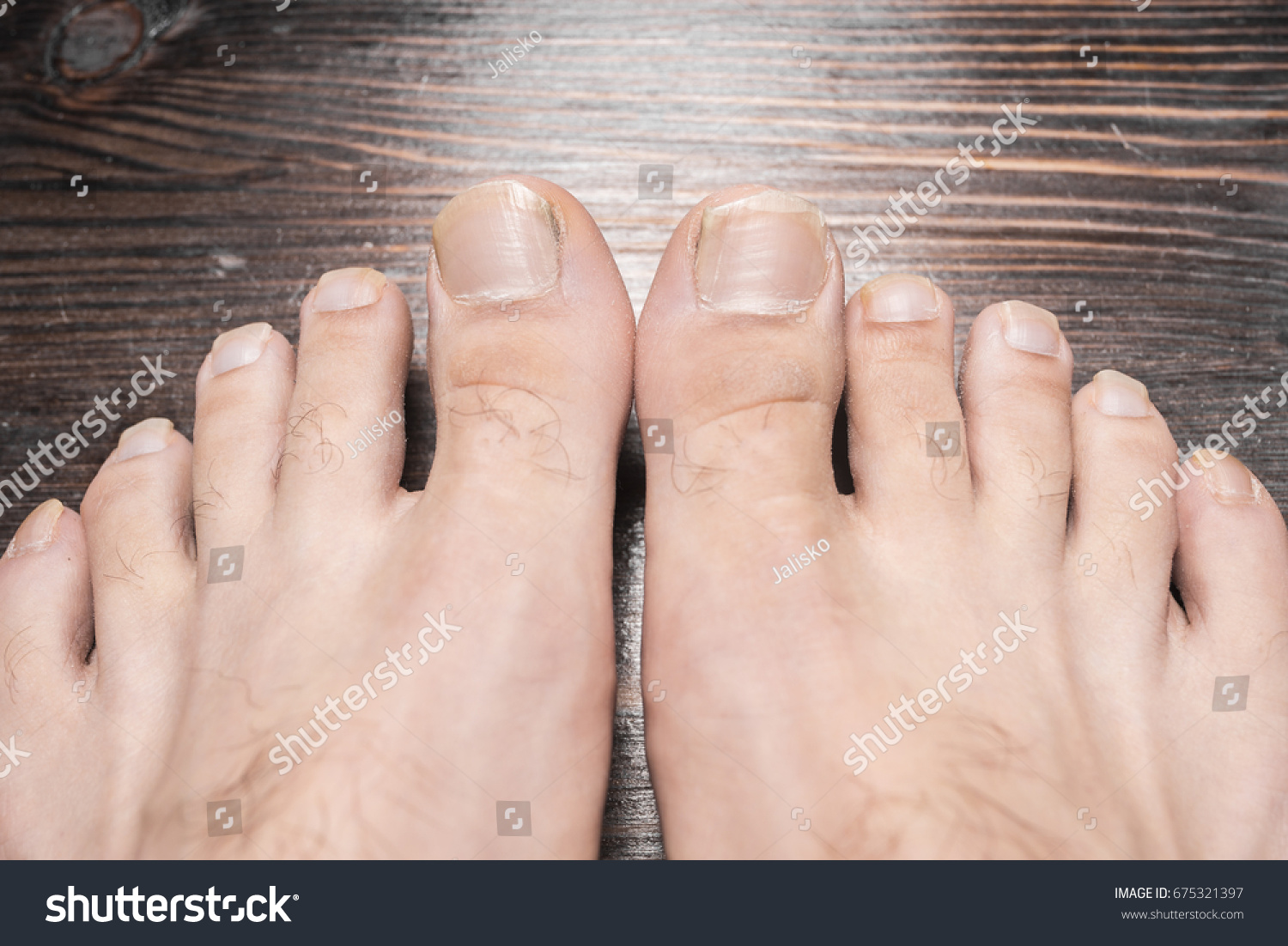 Long Toenails Stock Photo (Royalty Free) 675321397 - Shutterstock