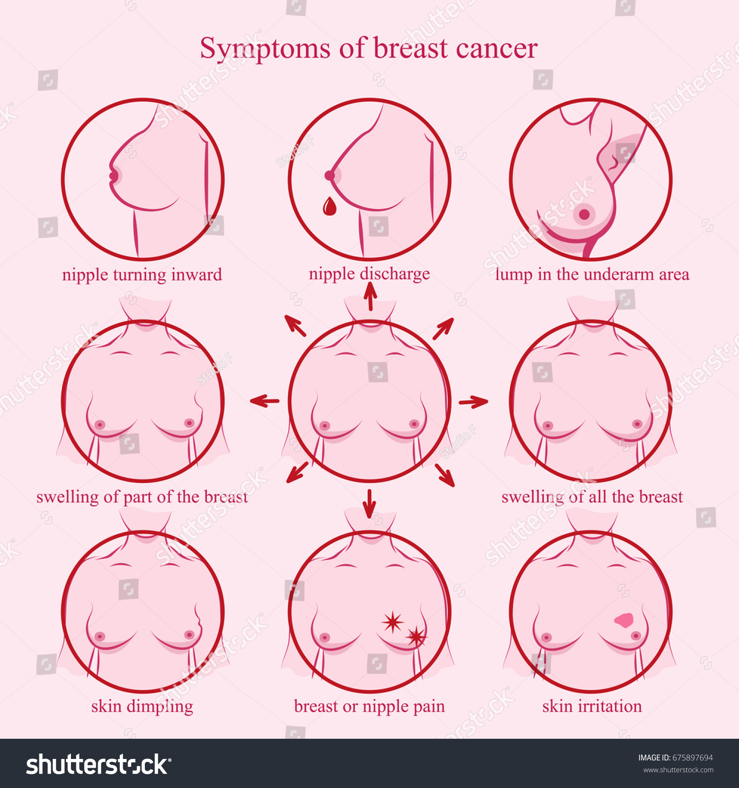 Symptoms Breast Cancer Medicine Pathology Anatomy Vector de ...