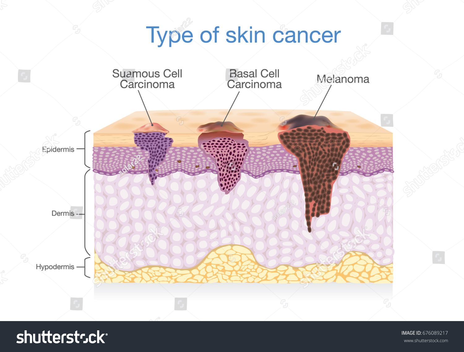 Skin layer have 3 type cancer stock vector 676089217 shutterstock skin layer have 3 type of cancer in one illustration about medical diagram pooptronica Image collections