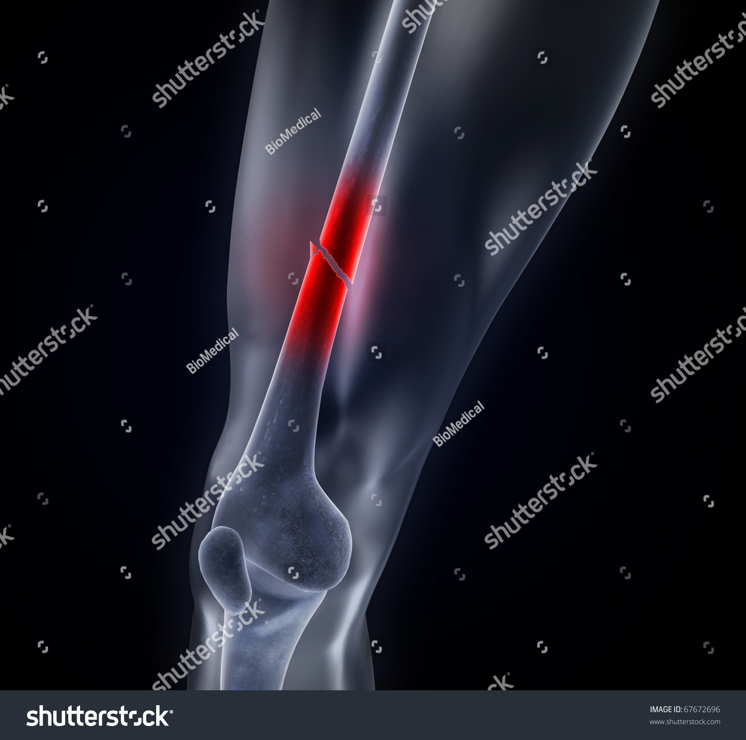 Crushed Human Bone : Fractured femur skeleton broken leg stock illustration