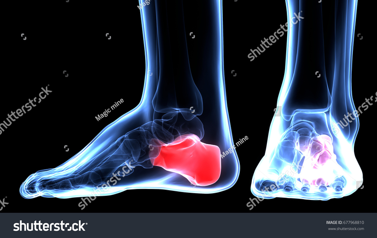 Royalty Free Stock Illustration Of Human Body Bone Joint Pains