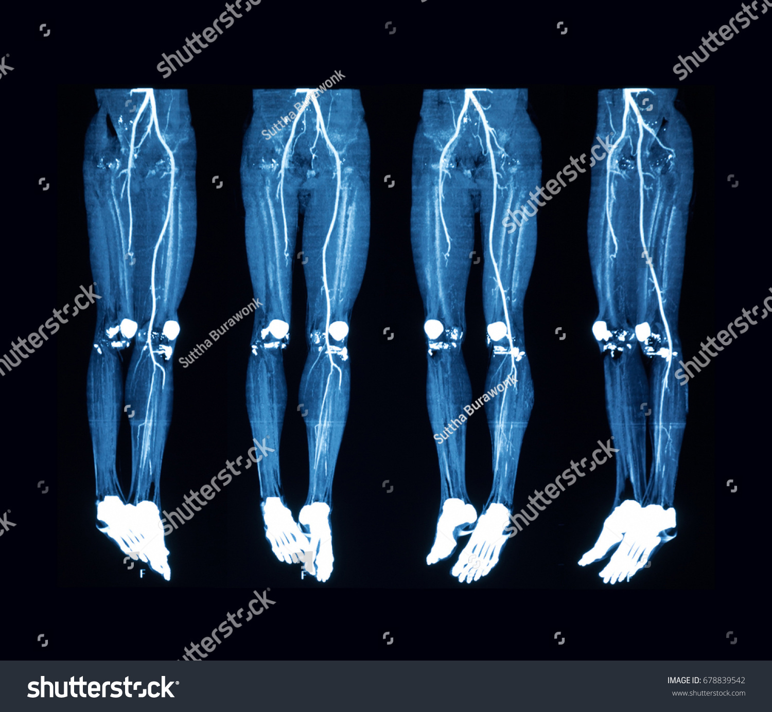 CTA Computed Tomography Angiography Lower Extremities Stock Photo ...